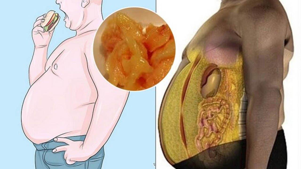 gordura-abdominal-tratamento